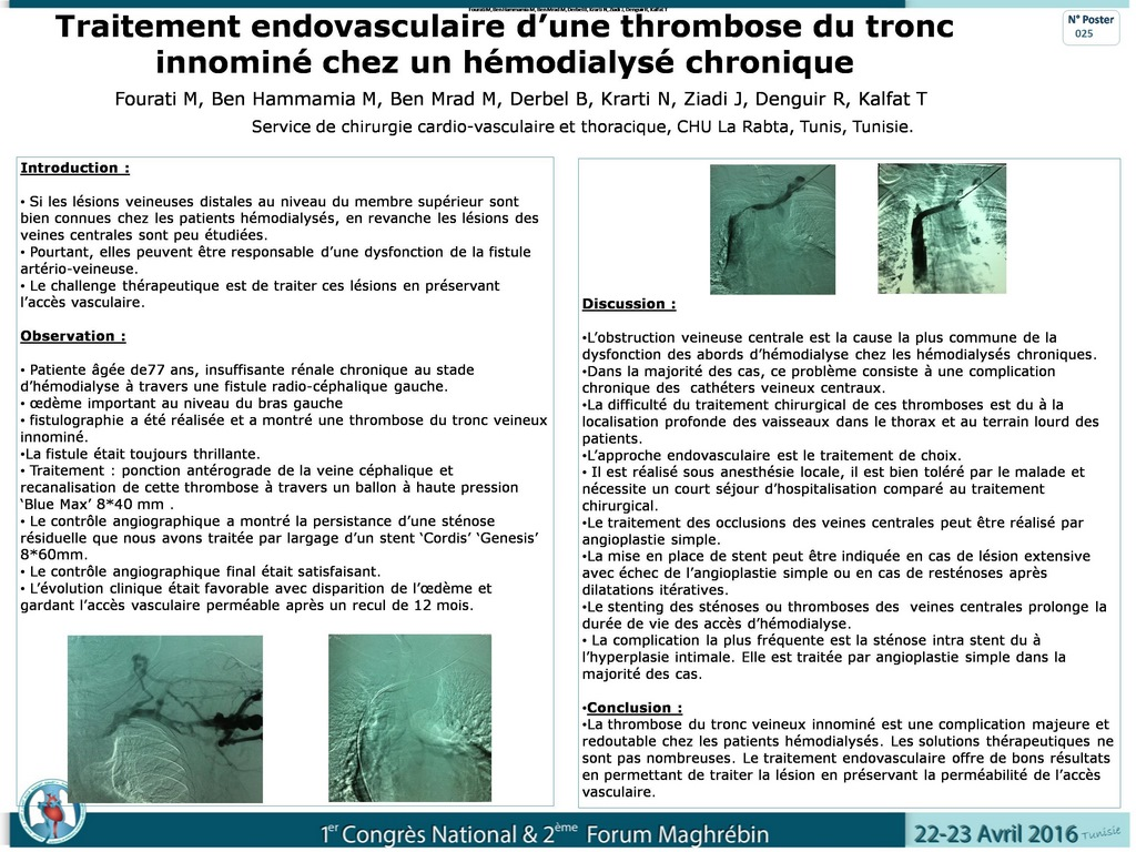 dissection carotidienne prise en charge